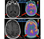 PET and MRI Neuroimaging in Posterior Cortical Atrophy: A Degenerative Disorder Most Commonly Associated with Alzheimer's disease Pathology