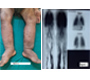 Primary Lymphedema