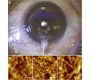 Corneal Stroma Revealed by Atomic Force Microscopy at Nanoscale