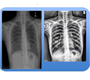 Pulmonary edema detection in chest x-ray using machine learning