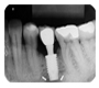 Auxiliary Method for the Diagnosis of the Implant Periapical Lesion