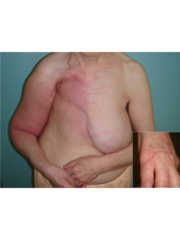 Lymphangitis due to Insect Sting after Radical Mastectomy