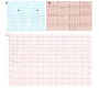 Spontaneous All Three Electrocardiographic Patterns in Same patient with Brugada Syndrome