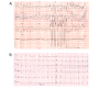 Uncommon Cause of Wide QRS Complex Tachycardia, Mahaim Tachycardia Revisited