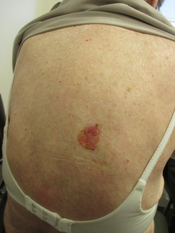 Superficial Basal Cell Carcinoma