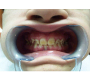 Dental Findings Associated with Hypoparathyroidism