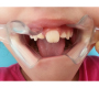 Teeth Stuck Togther:A Double Teeth Anomaly