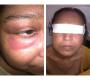 Skin Rashes in Systemic Lupus Erythematosus
