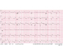 EKG Changes in Severe Hyperkalemia in Digoxin Toxicity