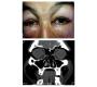 Periorbital Subcutaneous Emphysema
