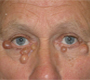 Bilateral Peri-Orbital Skin Lesions
