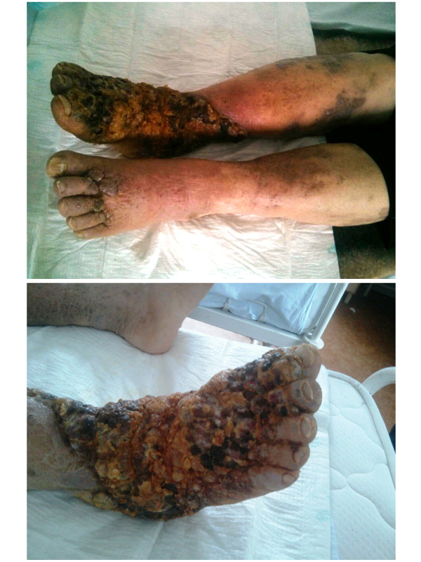 Images of Kaposi Sarcoma - Inferior Limb Skin Lesions: Case