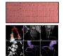 Anomalous Origin of the Right Coronary Artery with Inter-Aorto-Pulmonary Course Highlighted by ECG-gated Cardiac CT Angiography