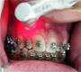 Orthodontics Therapy using Laser