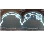 Adenoid Cystic Carcinoma Lacrimal Gland