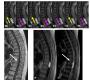 Time-SLIP Reveals Intramedullary Flow in Syringomyelia