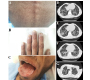 Dyskeratosis Congenita with Pulmonary Fibrosis