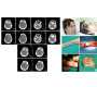 Frontoparietal Cranial Loss of Substance: CT Study and Microsurgical Reconstruction with Radial Flap.