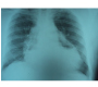 Hydropneumopericardium: Followed by Partial Pericardiectomy