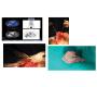 Port Site Metastasis Following Laparascopic Right Hemicolectomy