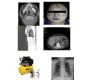 Severe Traumatic Pneumothorax, Pneumomediastinum and Pneumoperitonium
