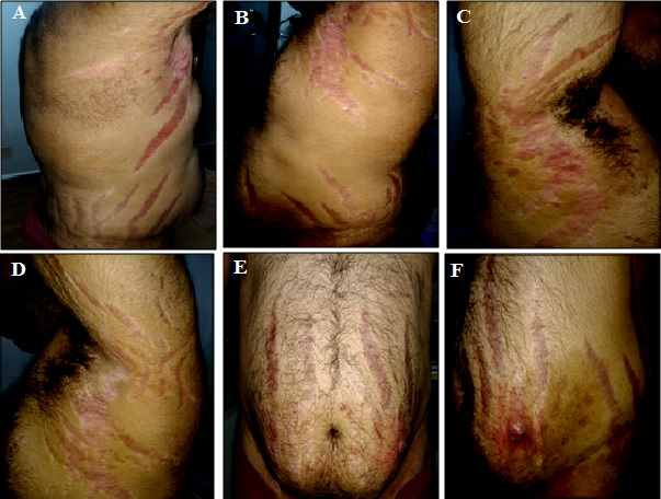 Hypercortisolism Signature: A Florid Case of Iatrogenic Cushing's Syndrome Induced by Topical Steroid