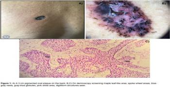 Basal Cell Carcinoma: An Unusual Localization and a Typical Dermoscopy