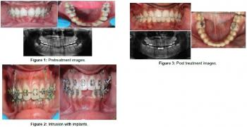 Preprosthetic Orthodontic Treatment of Deep Bite with Congenitally Missing Mandibular Central Incisors