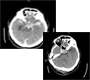 Traumatic Subarachnoid Hemorrhage and Contusion