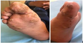 Plantar Warts in an Immunocompromised Child