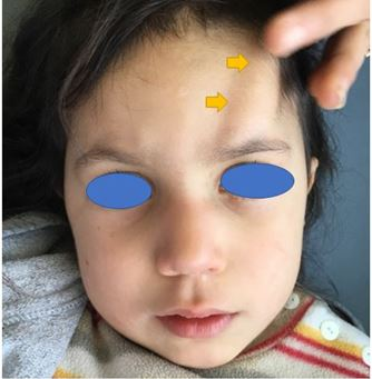 A Supraorbital Tumefaction in the Child
