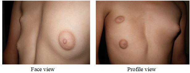 Supernumerary Breast in an Adolescent girl