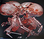 Imaging of Thoraco-Omphalopagus Conjoined Twins in the Interventional Radiology Suite