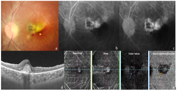 Multimodal Imaging in Ocular Toxoplasmosis Complicated By Choroidal Neovascularizationd